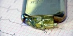 [Genius] Russia has developed a battery that lasts long, life is 50 years.